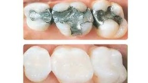 Fillings and Restorative Dentistry